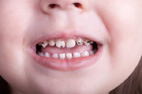 Alternatives To Filling Cavities In Baby Teeth • Easy ...